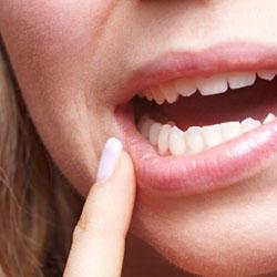 Sécheresse de la bouche