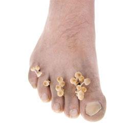 Le microorganisme végétal des pieds la prophylaxie des chaussures